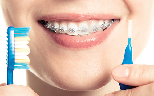 Orthodontic Considerations for the Dental Hygienist