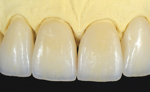 All-Ceramic Crowns and Veneers in the Aesthetic Practice