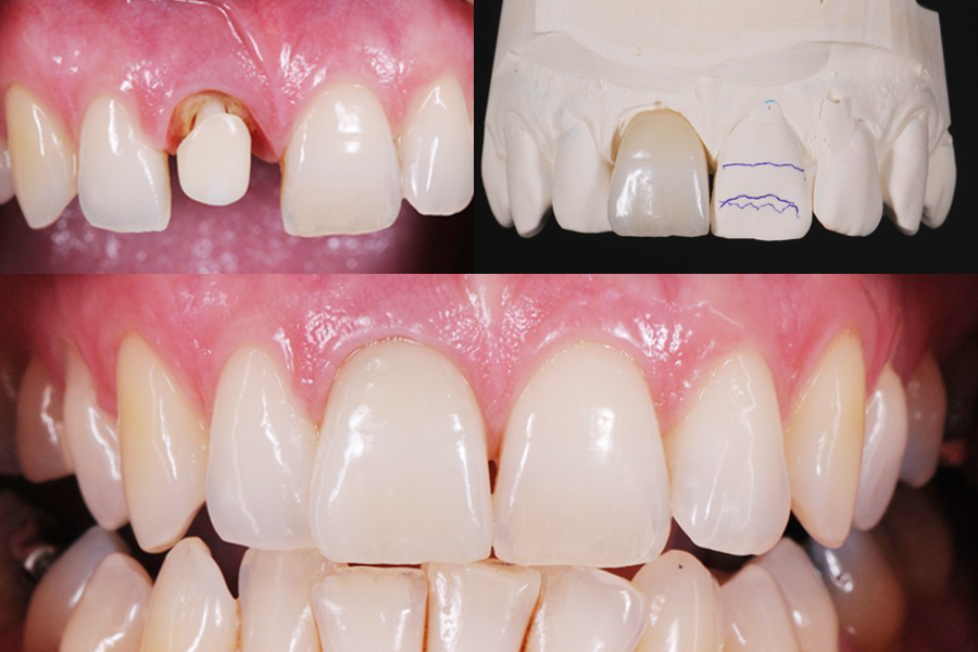 Update in Restorative Dentistry
